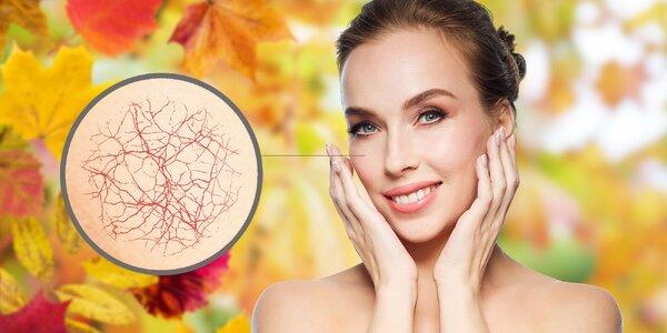 Odstraňovanie popraskaných žiliek na tvári pomocou prístrojovej termokoagulácie