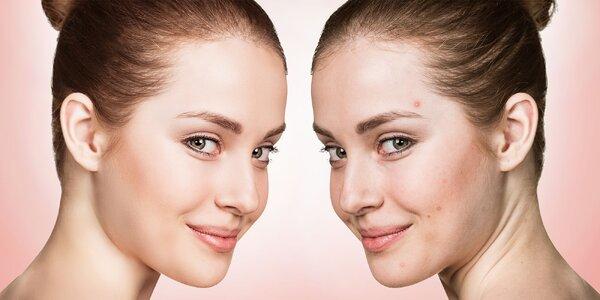 Exkluzívny balíček moderných kozmetických procedúr proti akné