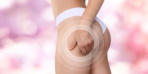 Anticelulitídna masáž alebo vianočný balíček krásy a oddychu