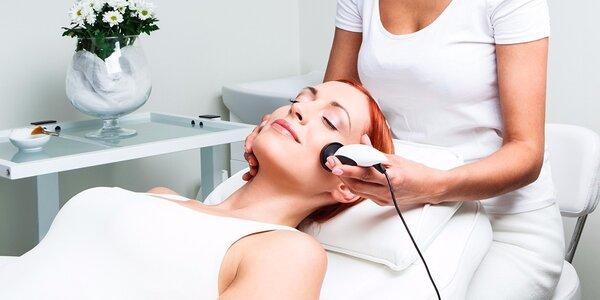 Tvárová alebo telová omladzujúca rádiofrekvencia