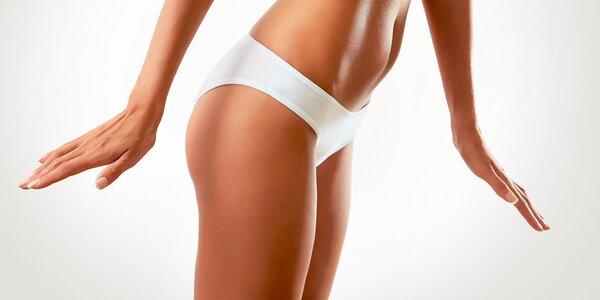 Ultrazvuková liposukcia, rádiofrekvencia a lymfodrenáž