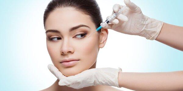 Aplikácia botulotoxínu do vybranej časti tváre
