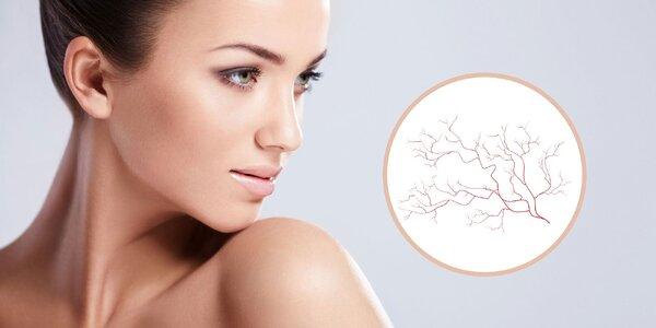 Odstraňovanie popraskaných žiliek na tvári