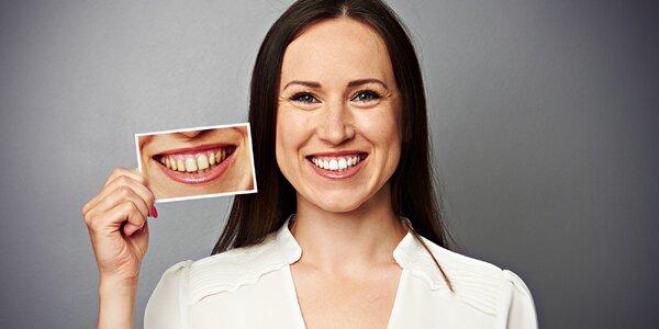 Revolučné expresné bielenie zubov bez peroxidu