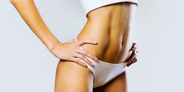 Anticelulitídna masáž alebo anticelulitídny zábal