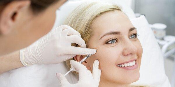 Botox proti vráskam či poteniu