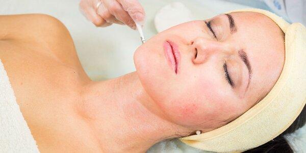 Peeling, LED maska alebo kyselina hyalurónová