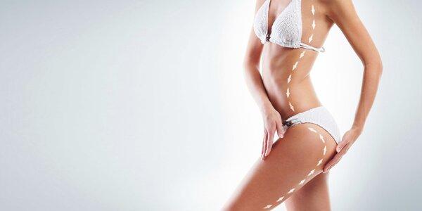 Laserová neinvazívna liposukcia