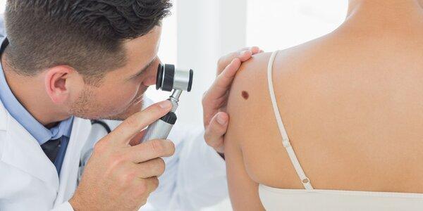 Vyšetrenie, diagnostika a odstránenie znamienok