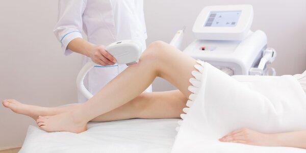 Trvalé odstránenie chĺpkov s laserovou epiláciou
