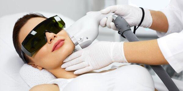 Laserová epilácia rôznych oblastí