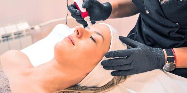 Mezoterapia vybranej oblasti či celej tváre