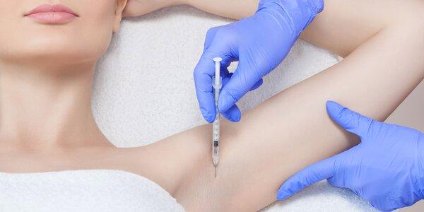 Redukcia nadmerného potenia aplikáciou botoxu