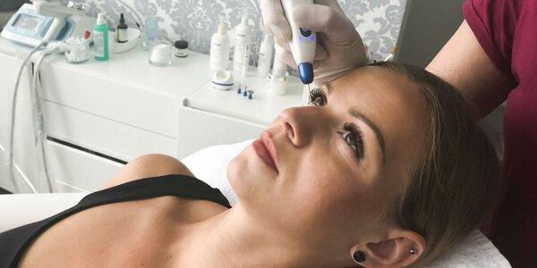 Nechirurgický lifting tváre či odstránenie pigmentových škvŕn