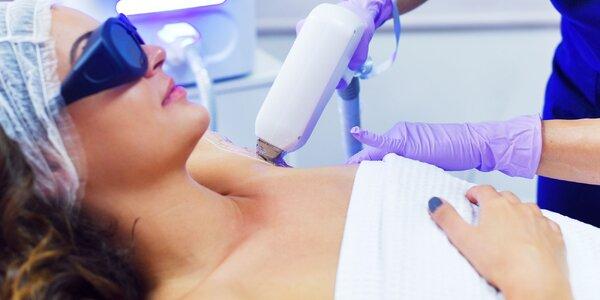 Epilácia diódovým laserom pre každého