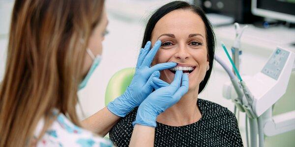 Žiarivý úsmev vďaka bieleniu zubov vo Family Dental Care