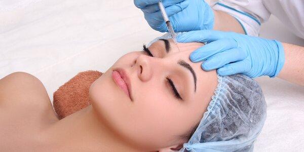 Odstránenie vrások botoxom alebo mezobotoxom