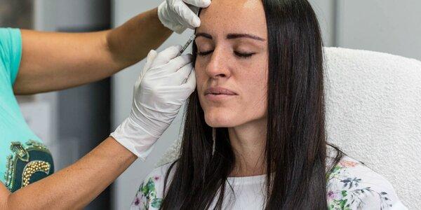 Botox proti vráskam alebo poteniu