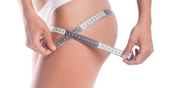 Účinné odstránenie tuku lokálnou lipolýzou