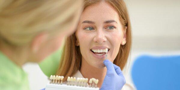 Rovné, zdravé a biele zuby vo Family Dental Care!
