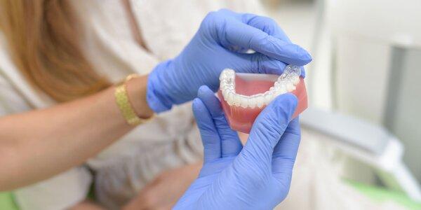 """Konzultácia k """"neviditeľnému"""" zubnému strojčeku"""