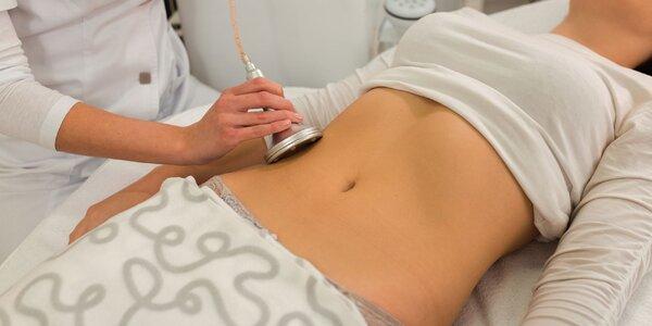 Rádiofrekvencia, liposukcia ultrazvukom a infrared