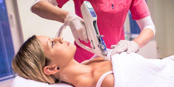 Omladenie pokožky vlastnou krvnou plazmou