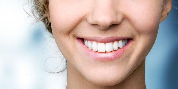 Bielenie zubov systémom ZOOM 2 + otvorený voucher v CENT DENT