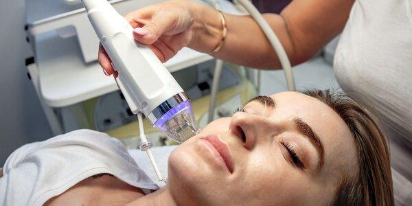 Rejuvenizácia pleti alebo frakčná mikroihličková rádiofrekvencia s LED maskou
