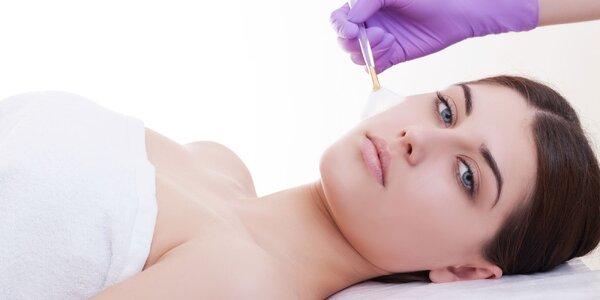 Jemný chemický peeling tváre, krku a dekoltu