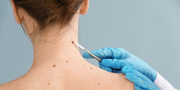 Laserové odstránenie znamienok plastickým chirurgom