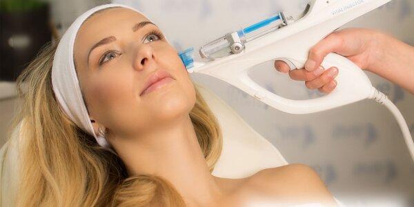 Unikátna vitamínová mezoterapia s Dermaheal HSR