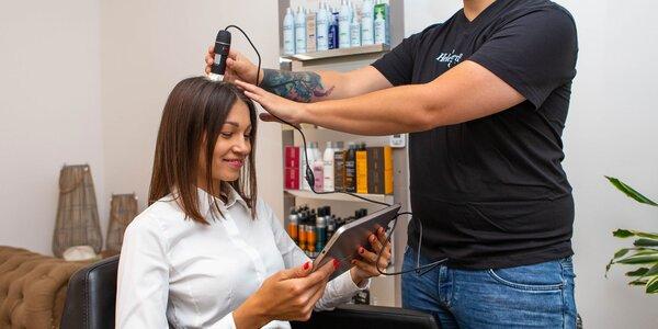 Vlasové vyšetrenie trichogramom a regenerácia