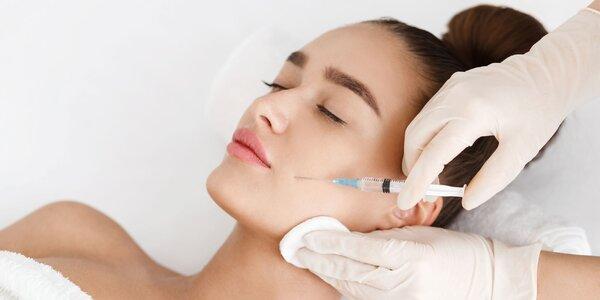 Limitovaná augustová akcia na botoxové ošetrenie!