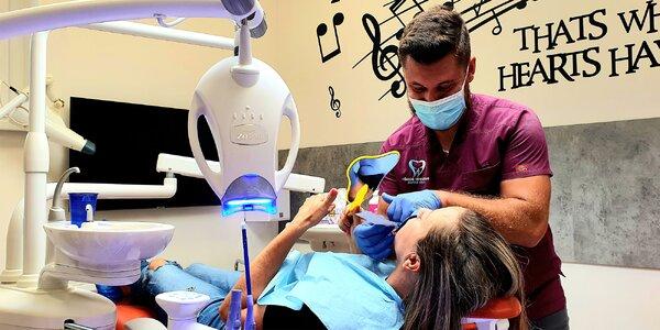 Dentálna hygiena a najmodernejšie bielenie zubov