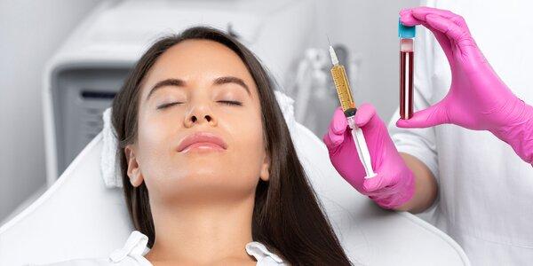 Elixír krásy - drakuloterapia vlastnou plazmou