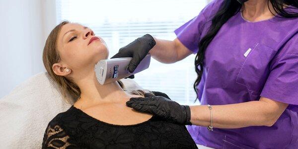 Neinvazívny lifting tváre pomocou pulznej hlavice HIFU