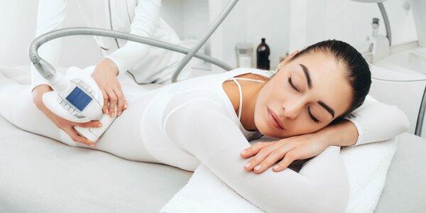LPG endermológia: získajte pevné a omladené telo!