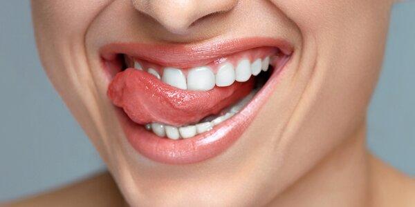 Darujte Laserové bielenie zubov Brilliant Smile