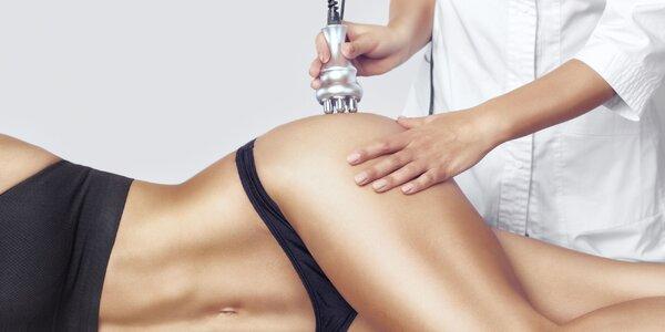 Redukcia tuku a celulitídy medicínskou podtlakovou rádiofrekvenciou