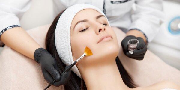 Chemický peeling či ošetrenie pleti LIFTING
