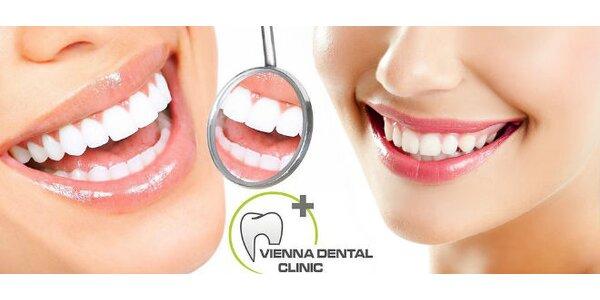 Dentálna hygiena a zosvetlenie zubov fluorydačným gélom