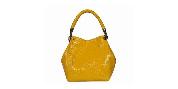 Dámska žltá vzorovaná kabelka POON Bags