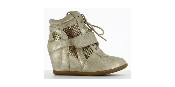 Dámske zlaté tenisky na kline Shoes and the City
