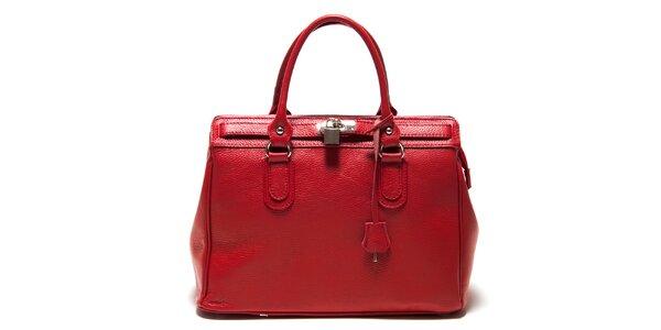 Dámska červená kabelka so zámčekom Roberta Minelli