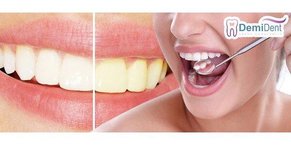 Dentálna hygiena, pieskovanie alebo profesionálne bielenie