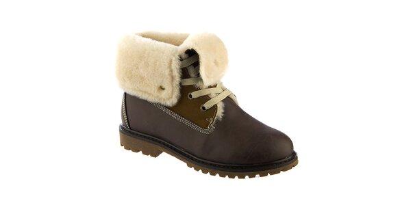 ccf4f659c922 Dámske tmavo hnedé členkové topánky s kožúškom Keddo