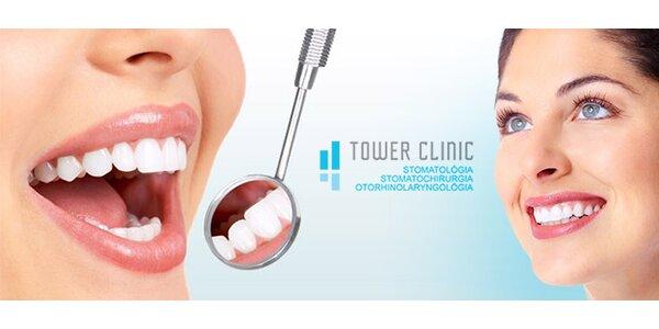 Luxusná komplexná zubná starostlivosť v exluzívnej klinike
