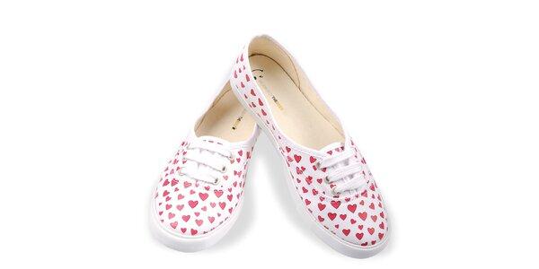 Dámske topánky so srdiečkami The Bees