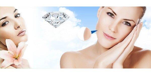 Diamantová mikrodermabrázia a ozonizér